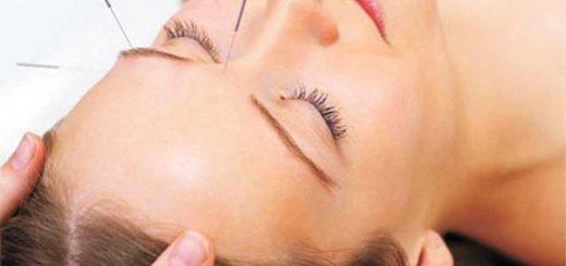 embarazo y acupuntura